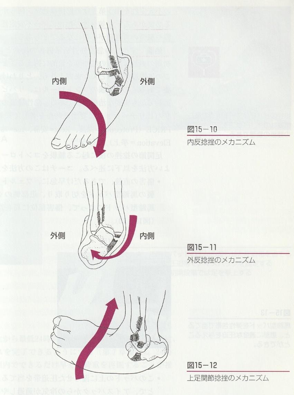 足関節捻挫
