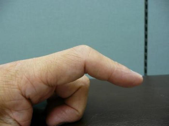 骨折 の 違い 突き指 と