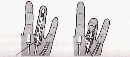 ばね指・弾発指