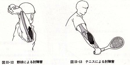 野球肘・テニス肘